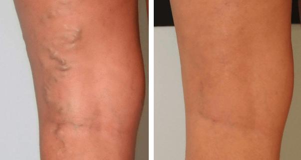 Prima e dopo il trattamento delle vene e dei capillari
