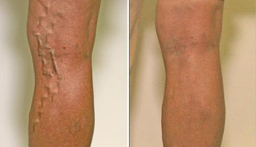 Infiammazione delle vene sulle gambe sintomi