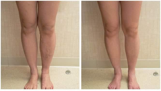 Immagini prima e dopo il trattamento con il gel per le vene