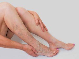 vene gonfie sulle gambe